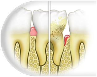 periodontologia-opole