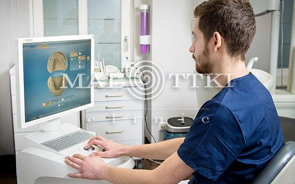 stomatologia estetyczna onlay