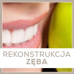 rekonstrukcja zęba opole