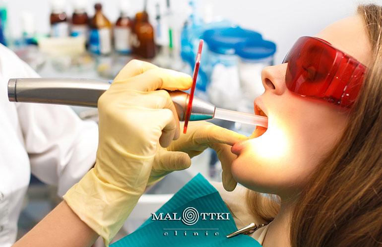 wypełnienia zębów opole
