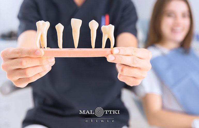 usuwanie zębów opole