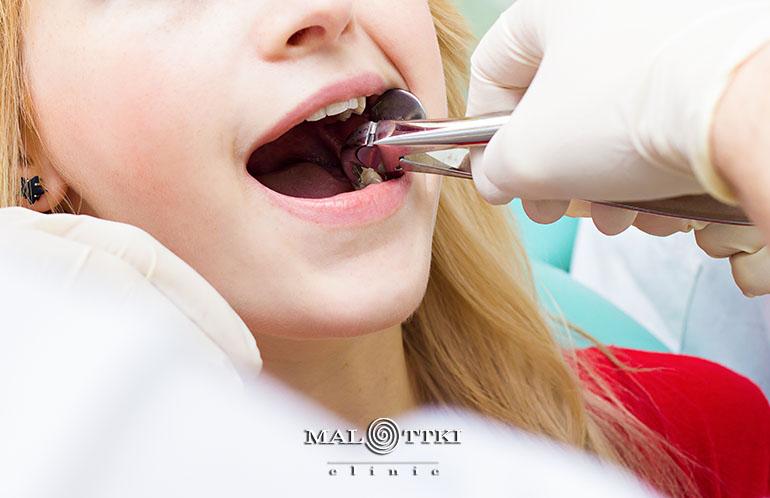 ekstrakcja zębów opole