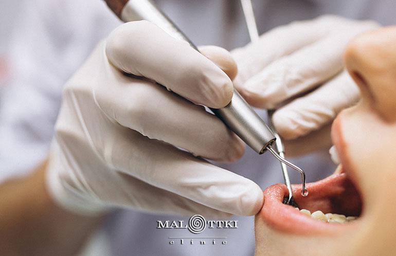 bezbolesne leczenie zębów opole