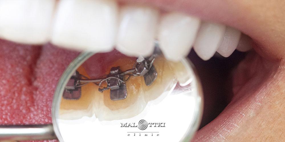 ortodoncja opole